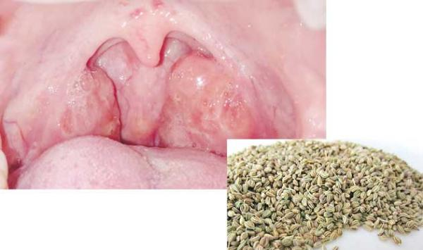 Treatment Of Transmural Tonsils By Ajayan