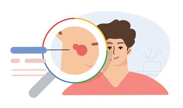 Googles Diagnostic Tool
