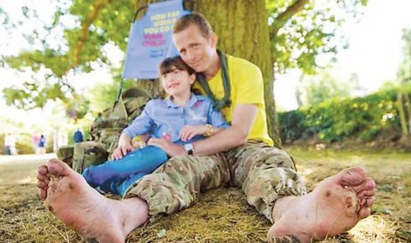 Father Walks 1200 Miles Barefoot To Treat Daughter