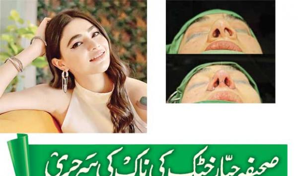 Sahifa Jabbar Khattaks Nose Surgery